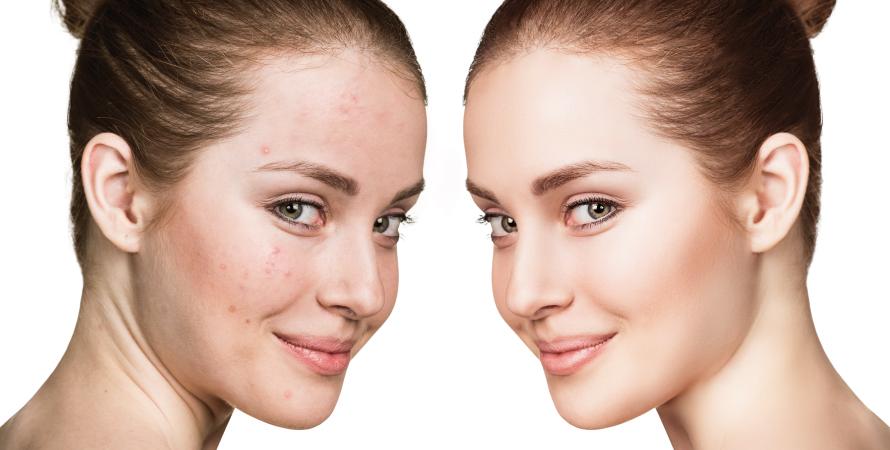 acne prima e dopo